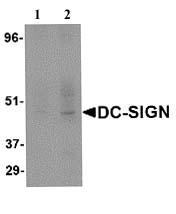 Western blot - Anti-DC-SIGN antibody (ab5715)