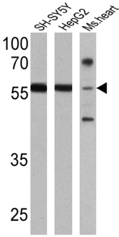 Western blot - Anti-Retinoic Acid Receptor beta antibody (ab5792)