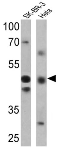 Western blot - Anti-Retinoic Acid Receptor gamma 2 antibody (ab5905)