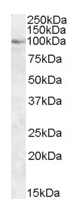 Western blot - Anti-OSBP1 antibody (ab5915)