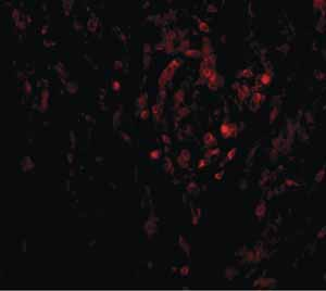 Immunocytochemistry/ Immunofluorescence - Anti-CIKS antibody (ab5974)