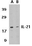 Western blot - Anti-IL21 antibody (ab5978)