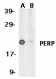 Western blot - Anti-PERP antibody (ab5986)