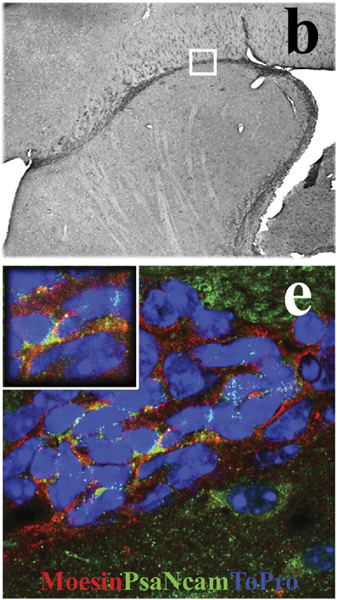 Immunohistochemistry (PFA fixed) - Anti-Moesin antibody [38/87] (ab50007)