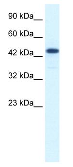 Western blot - Anti-CoREST3 / RCOR3 antibody (ab50197)