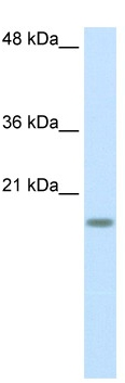 Western blot - Anti-RPS14 antibody (ab50390)