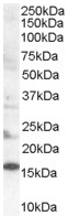 Western blot - Anti-SH2D1A/SAP antibody (ab50422)