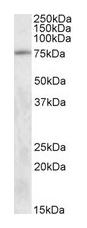 Western blot - Anti-TAK1 antibody (ab50431)