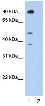 Western blot - Anti-SSB antibody (ab50573)