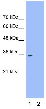 Western blot - Anti-Wnt2b antibody (ab50575)