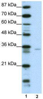 Western blot - Anti-ZNF177 antibody (ab50718)