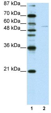 Western blot - Anti-GRHL3 antibody (ab50755)