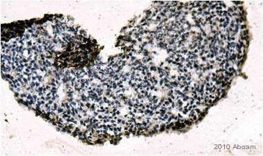 Immunohistochemistry (Formalin/PFA-fixed paraffin-embedded sections) - Anti-Rex1 antibody (ab50828)