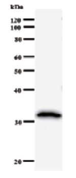 Western blot - Anti-HIP2 antibody [757C3a] (ab50837)