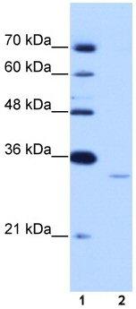 Western blot - Anti-EXOSC6 antibody (ab50910)
