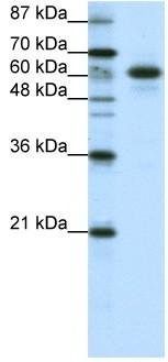 Western blot - Anti-CBLL1 antibody (ab50993)