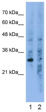 Western blot - Anti-GNB1L antibody (ab50998)