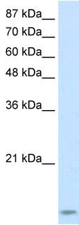 Western blot - Anti-TRBP antibody (ab51003)