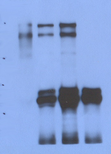 Immunoprecipitation - Anti-Factor H antibody [63G5] (ab51043)