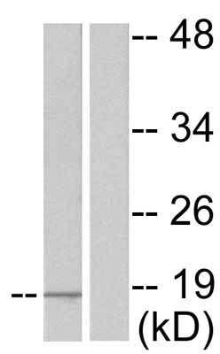 Western blot - Anti-Alpha-synuclein (phospho Y133) antibody (ab51104)