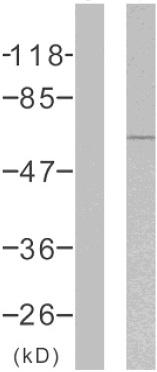 Western blot - Estrogen Receptor alpha (phospho S104 + S106) antibody (ab51107)