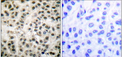 Immunohistochemistry (Formalin/PFA-fixed paraffin-embedded sections) - Anti-MEF2A antibody (ab51153)