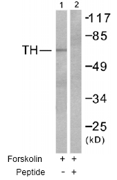 Western blot - Tyrosine Hydroxylase antibody (ab51199)