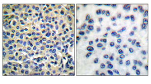Immunohistochemistry (Formalin/PFA-fixed paraffin-embedded sections) - Anti-LIM kinase 1 + 2 antibody (ab51200)