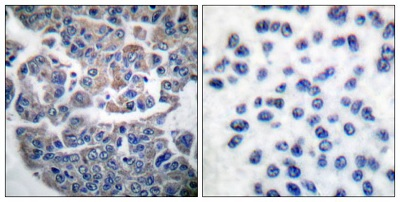 Immunohistochemistry (Formalin/PFA-fixed paraffin-embedded sections) - Anti-EEF2K (phospho S366) antibody (ab51227)