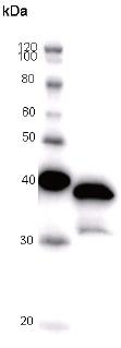 Western blot - Anti-RERE antibody [REREF1H8] (ab51374)