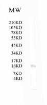 Western blot - Anti-Tryptophan rich protein antibody (ab51550)