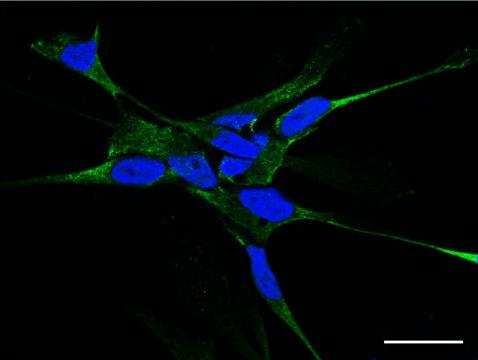 Immunocytochemistry/ Immunofluorescence - Anti-Semaphorin 5A antibody (ab51957)
