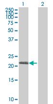 Western blot - Anti-RPL19 antibody (ab52028)
