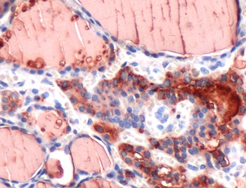 Immunohistochemistry (Formalin/PFA-fixed paraffin-embedded sections) - Anti-Thyroglobulin antibody [SPM517], prediluted (ab52134)
