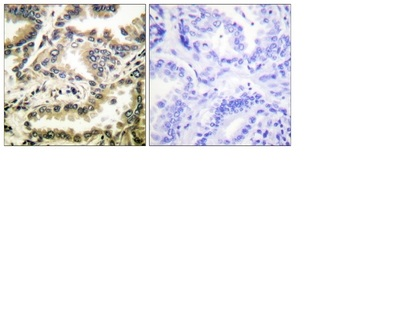 Immunohistochemistry (Formalin/PFA-fixed paraffin-embedded sections) - Anti-NF-kB p65 (acetyl K310) antibody (ab52175)