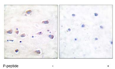 Immunohistochemistry (Paraffin-embedded sections) - NMDAR1 (phospho S897) antibody (ab52184)