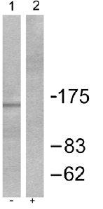 Western blot - Collagen IV antibody (ab52235)