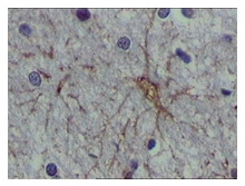 Immunohistochemistry (Formalin/PFA-fixed paraffin-embedded sections) - Anti-S100 alpha antibody [2C8B8] (ab52271)