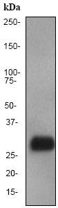 Western blot - Anti-Prion protein PrP antibody [EP1802Y] (ab52604)