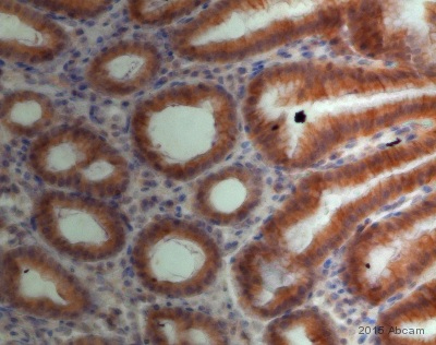 Immunohistochemistry (Formalin/PFA-fixed paraffin-embedded sections) - Anti-PLCG 2  (phospho Y1217) antibody [EP1404Y] (ab52610)