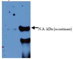 Western blot - Anti-alpha 2 Macroglobulin antibody (ab52651)
