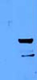 Western blot - Anti-MUM1 antibody (ab52713)