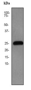 Western blot - Glutathione S Transferase kappa 1 antibody [EP1938Y] (ab52759)
