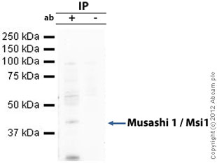 Immunoprecipitation - Anti-Musashi 1 / Msi1 antibody [EP1302] (ab52865)