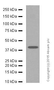 Western blot - Anti-MMP12 antibody [EP1261Y] (ab52897)