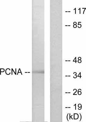 Western blot - PCNA antibody (ab53048)