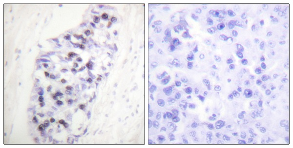 Immunohistochemistry (Formalin/PFA-fixed paraffin-embedded sections) - Anti-HDAC1 antibody (ab53091)