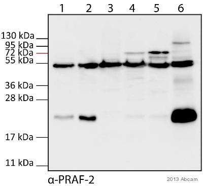 Western blot - Anti-JM4 antibody (ab53113)