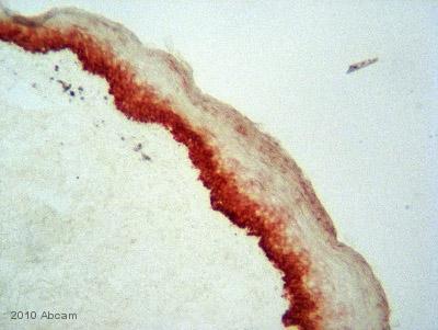 Immunohistochemistry (Frozen sections) - Cytokeratin 16 antibody (ab53117)