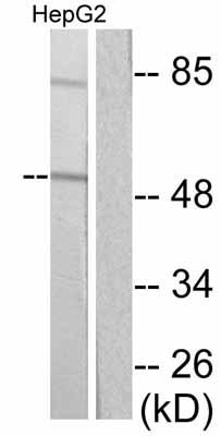 Western blot - Cytokeratin 16 antibody (ab53117)